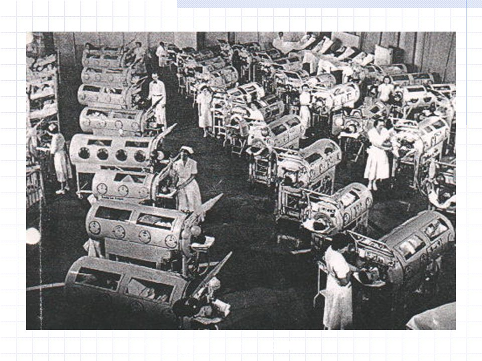Iron lung ward in the 1950 s