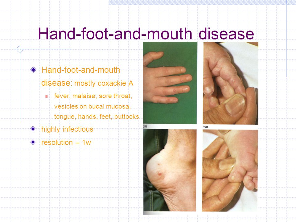 Hand-foot-and-mouth disease