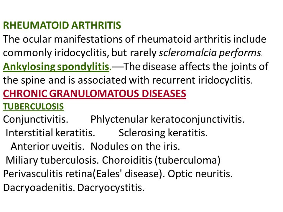 RHEUMATOID ARTHRITIS The ocular manifestations of rheumatoid arthritis include commonly iridocyclitis, but rarely scleromalcia performs.