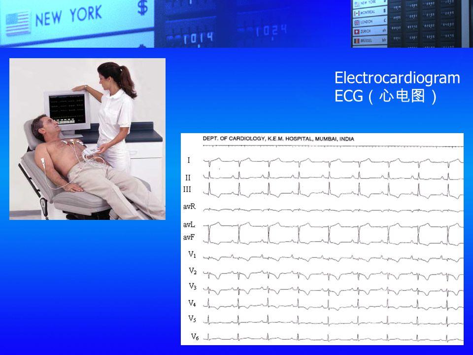 Electrocardiogram ECG(心电图)
