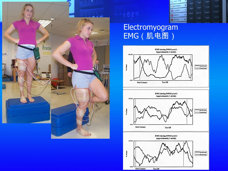 Electromyogram EMG(肌电图)