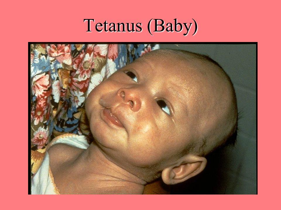 Tetanus (Baby)