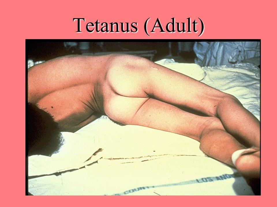 Tetanus (Adult)