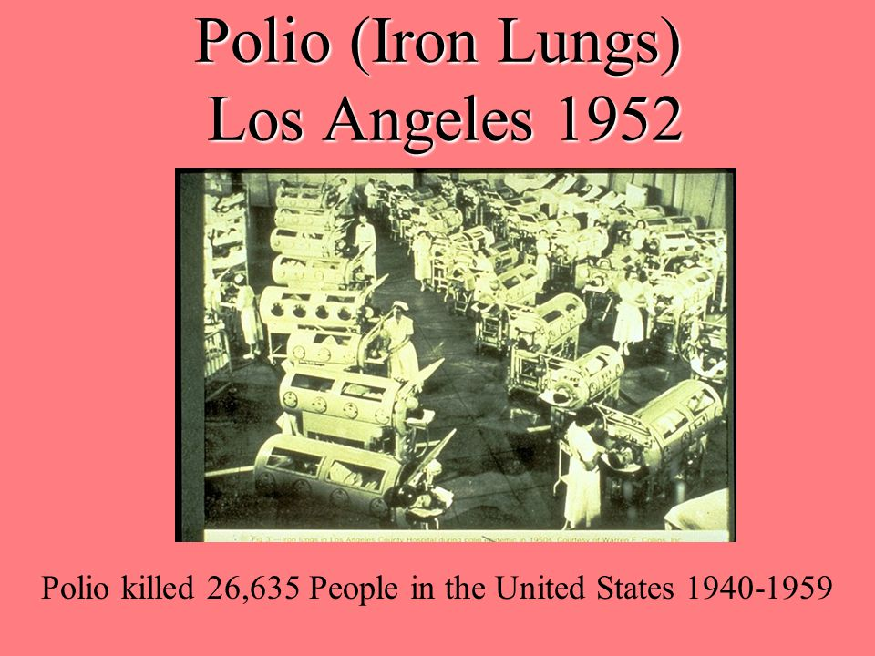 Polio (Iron Lungs) Los Angeles 1952