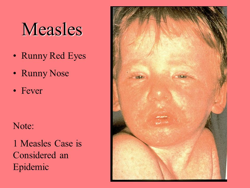 Measles Runny Red Eyes Runny Nose Fever Note: