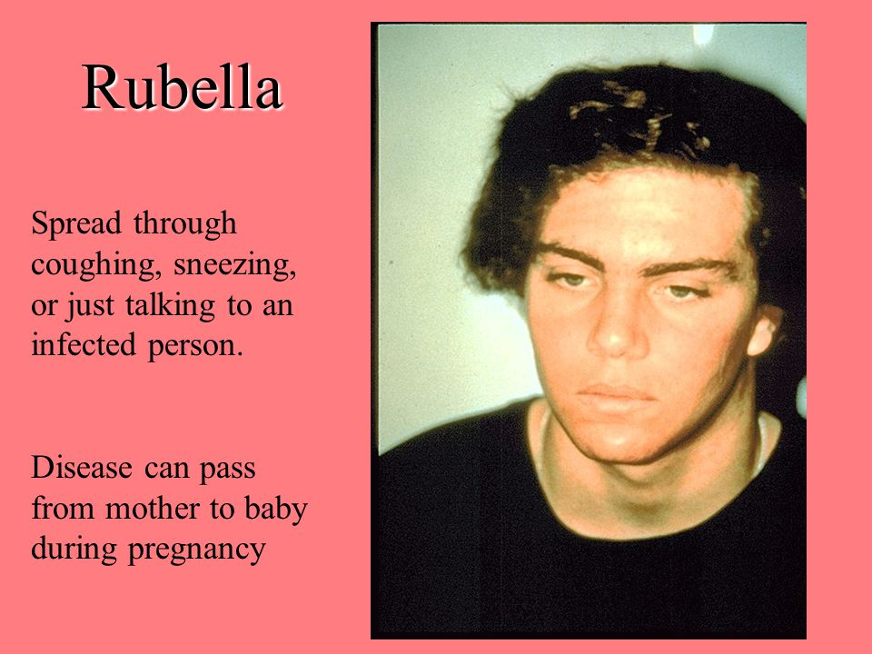 Rubella Spread through coughing, sneezing, or just talking to an infected person.