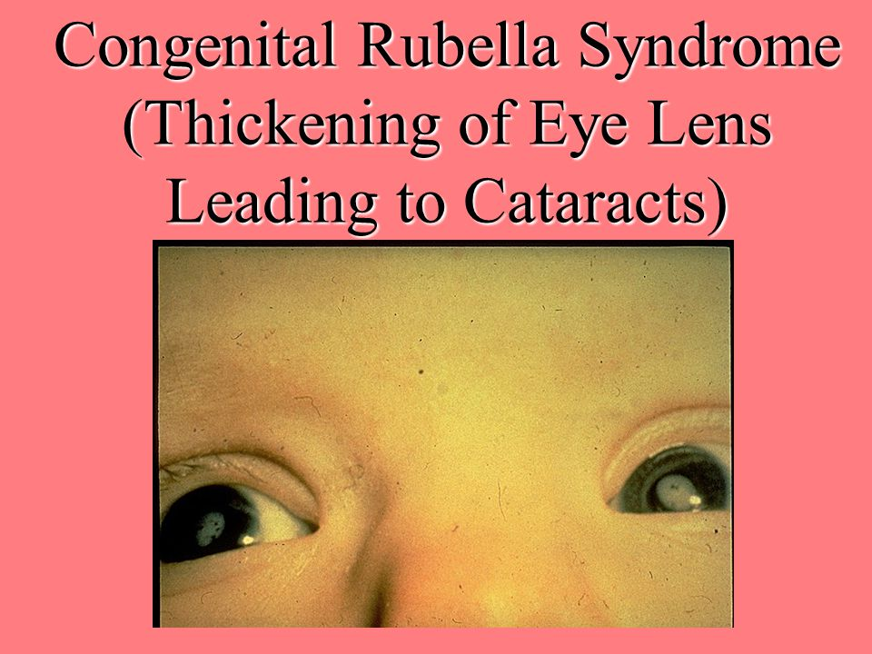 Congenital Rubella Syndrome (Thickening of Eye Lens Leading to Cataracts)