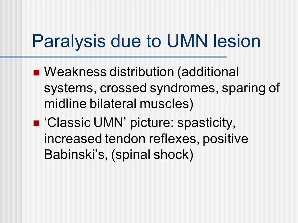 Paralysis due to UMN lesion