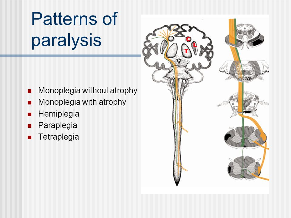 Patterns of paralysis Monoplegia without atrophy