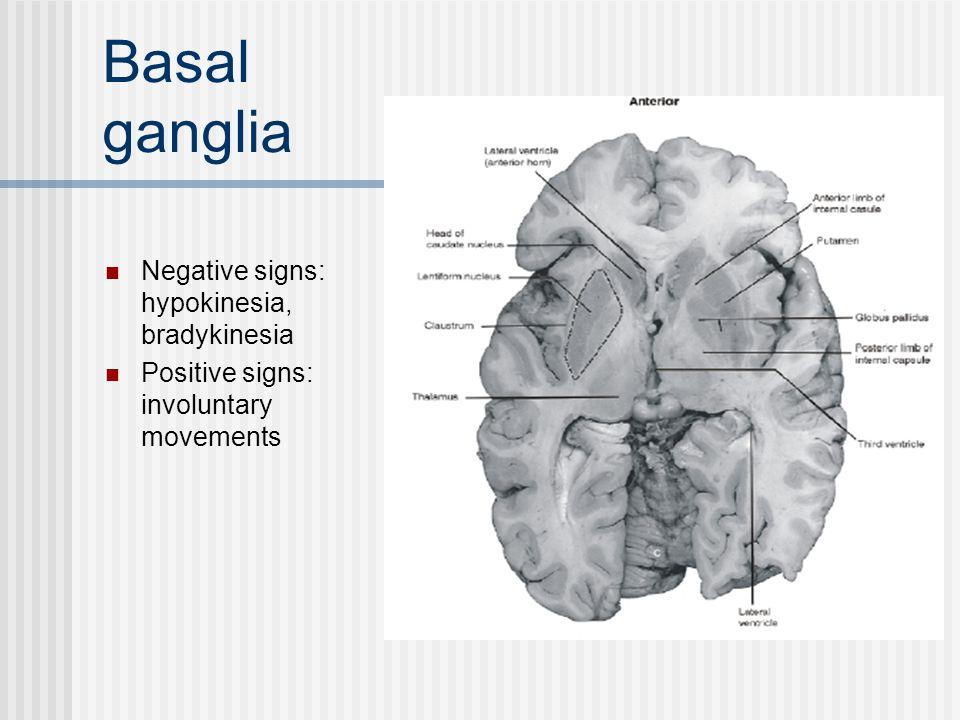 Basal ganglia Negative signs: hypokinesia, bradykinesia
