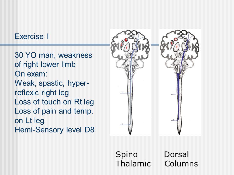 Exercise I 30 YO man, weakness of right lower limb On exam: Weak, spastic, hyper-reflexic right leg Loss of touch on Rt leg Loss of pain and temp. on Lt leg Hemi-Sensory level D8