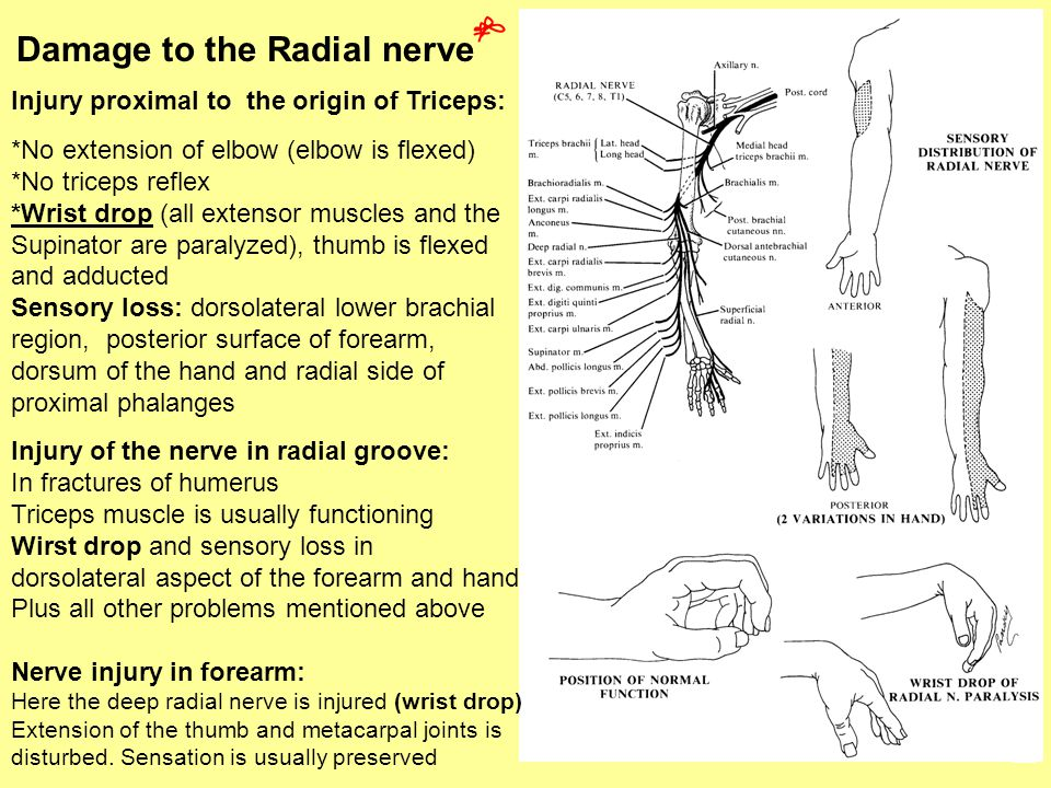 Damage to the Radial nerve