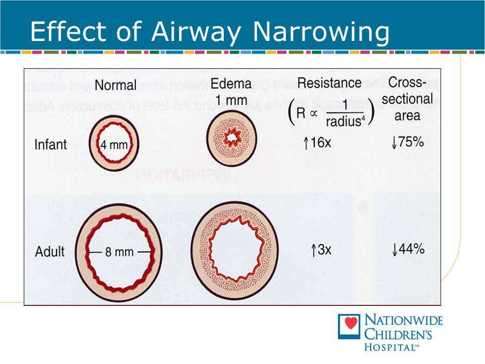 Effect of Airway Narrowing