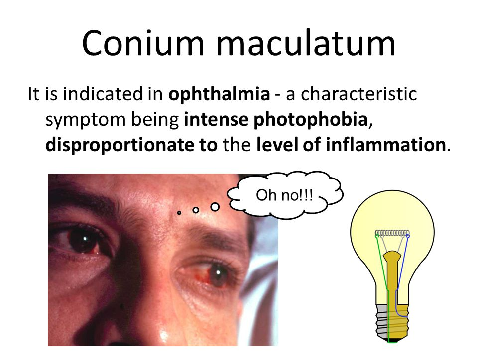 Conium maculatum It is indicated in ophthalmia - a characteristic symptom being intense photophobia, disproportionate to the level of inflammation.