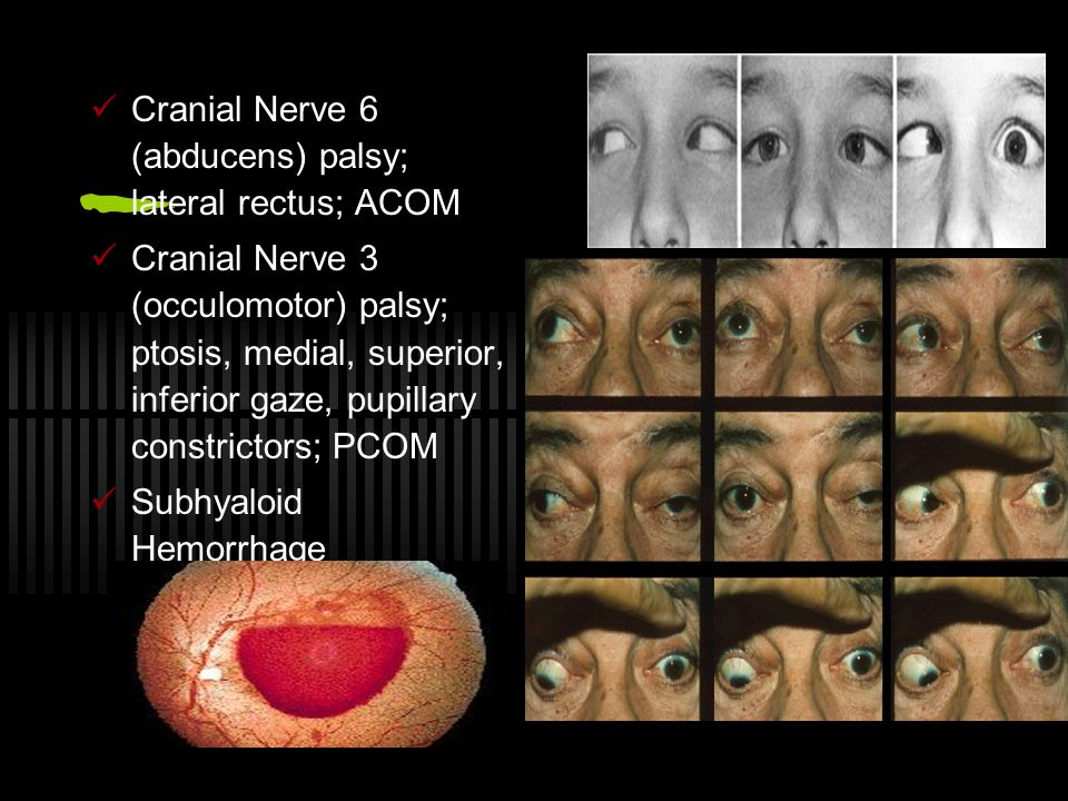 Cranial Nerve 6 (abducens) palsy; lateral rectus; ACOM
