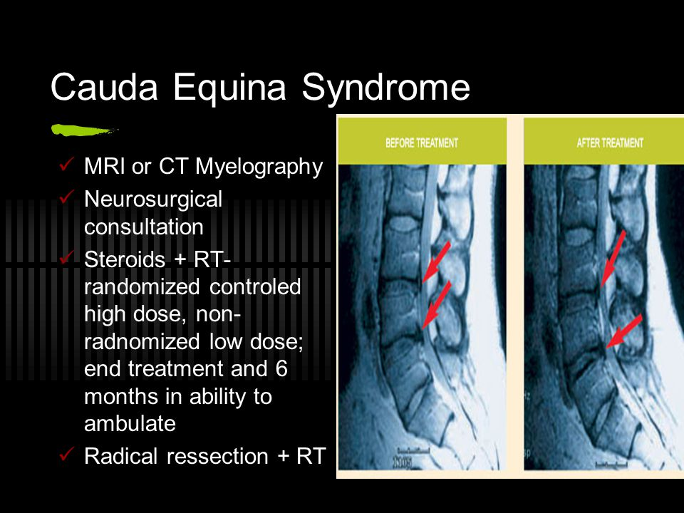 Cauda Equina Syndrome MRI or CT Myelography Neurosurgical consultation