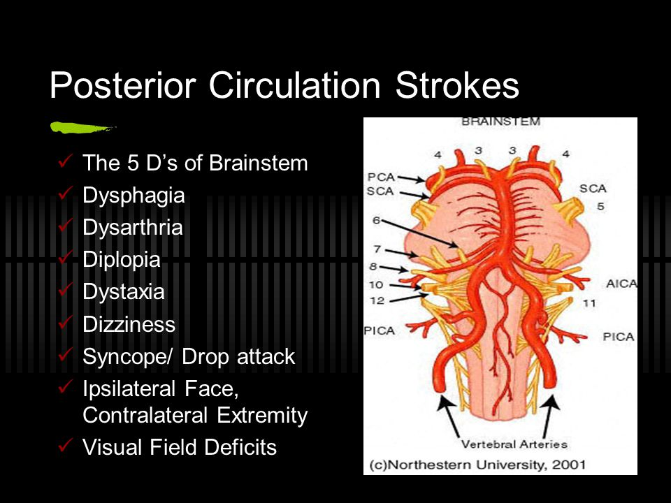 Posterior Circulation Strokes