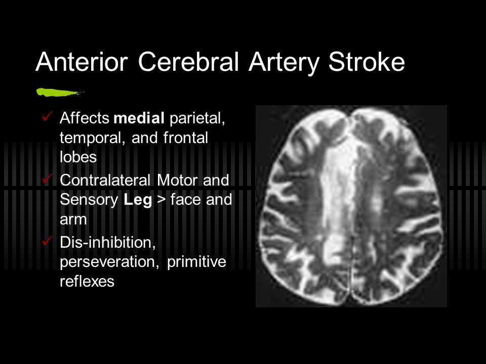Anterior Cerebral Artery Stroke