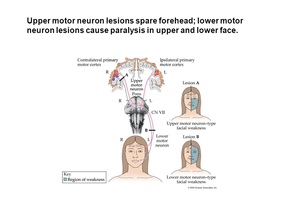 Upper motor neuron lesions spare forehead; lower motor neuron lesions cause paralysis in upper and lower face.