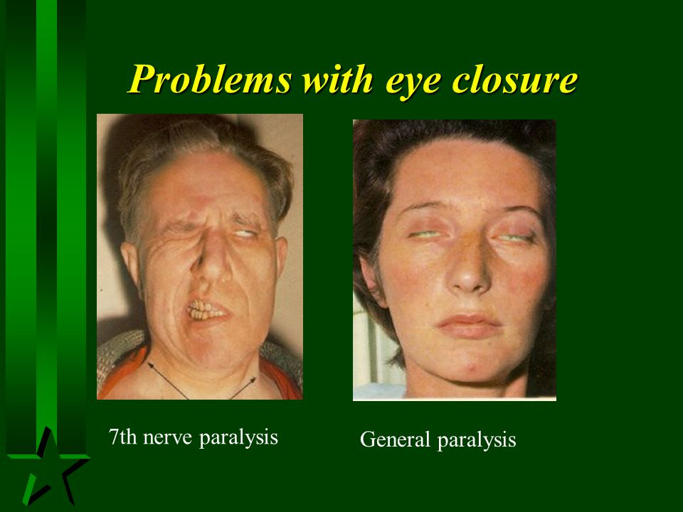 Problems with eye closure