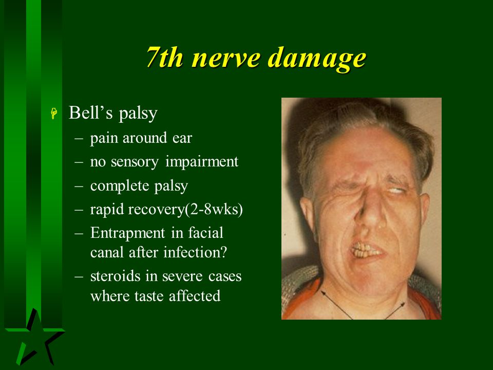 7th nerve damage Bell's palsy pain around ear no sensory impairment