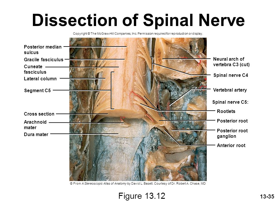 Dissection of Spinal Nerve