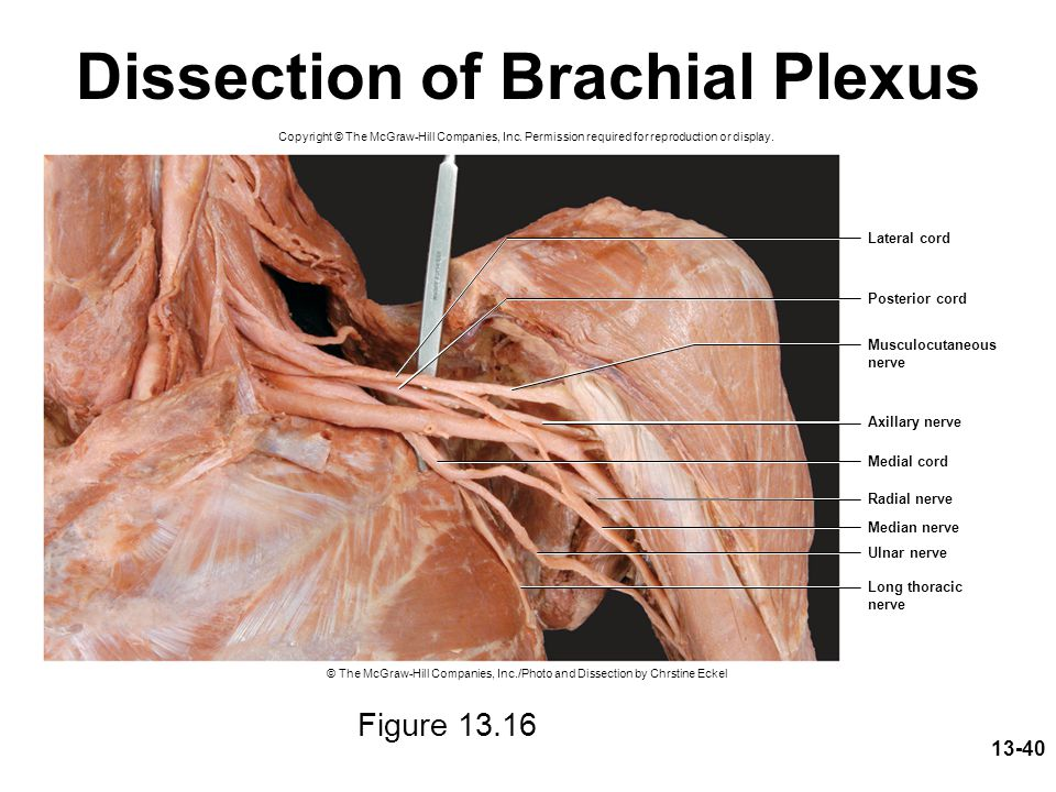 Dissection of Brachial Plexus