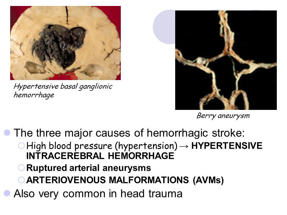 The three major causes of hemorrhagic stroke: