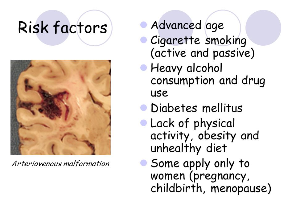 Risk factors Advanced age Cigarette smoking (active and passive)