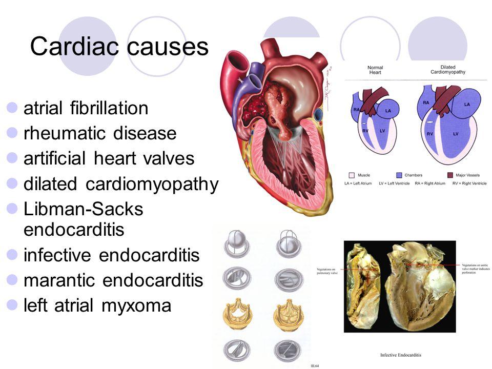 Cardiac causes atrial fibrillation rheumatic disease