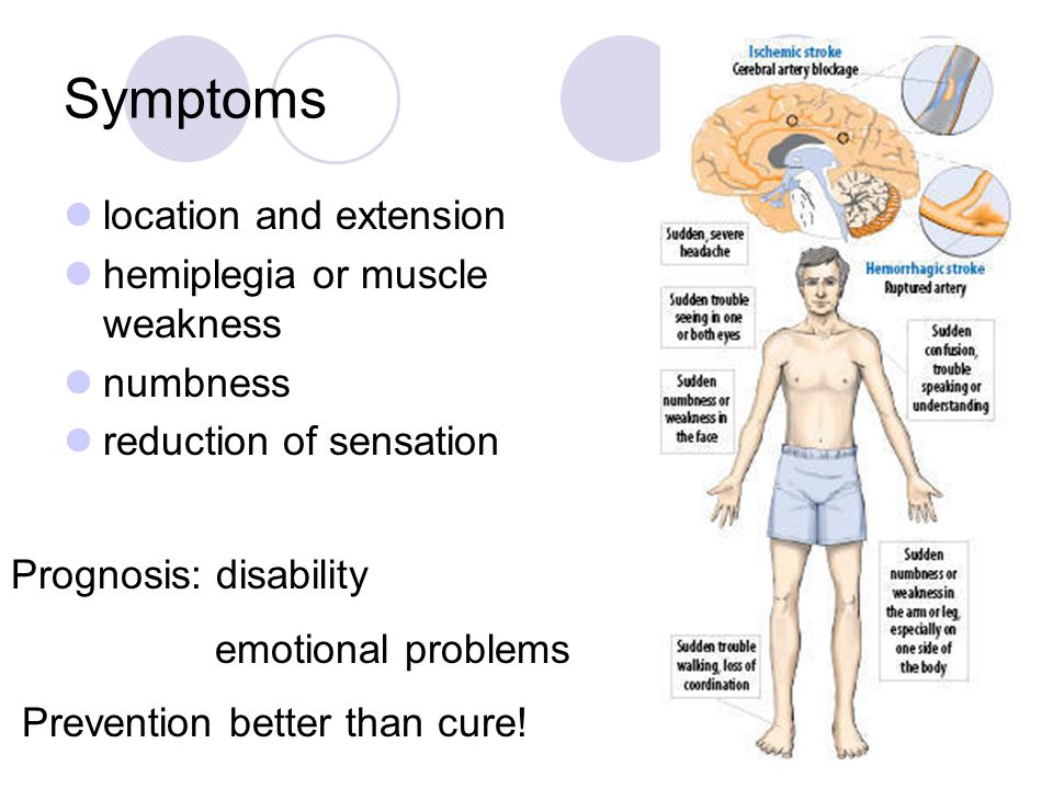 Symptoms location and extension hemiplegia or muscle weakness numbness