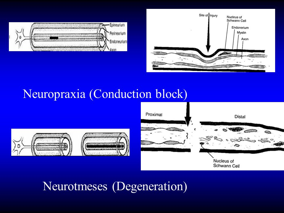 Neuropraxia (Conduction block)