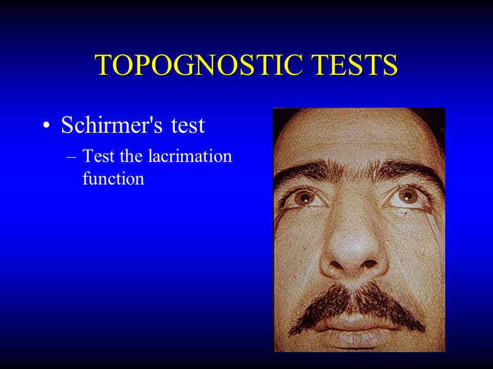 TOPOGNOSTIC TESTS Schirmer s test Test the lacrimation function