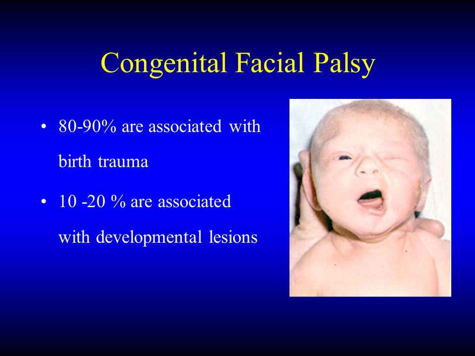 Congenital Facial Palsy