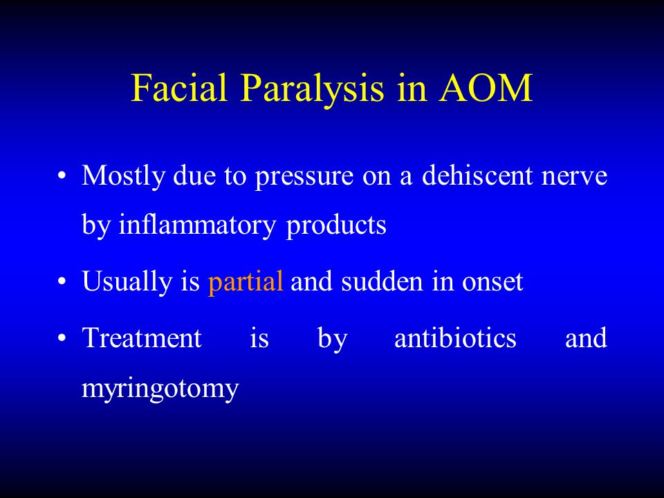 Facial Paralysis in AOM