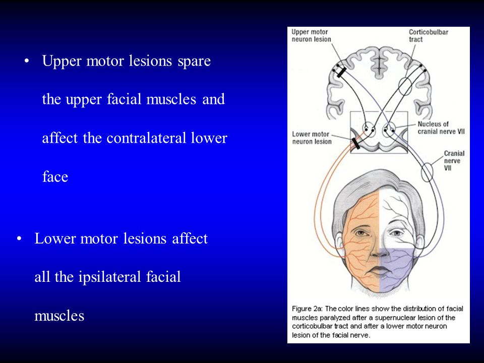 Upper motor lesions spare the upper facial muscles and affect the contralateral lower face