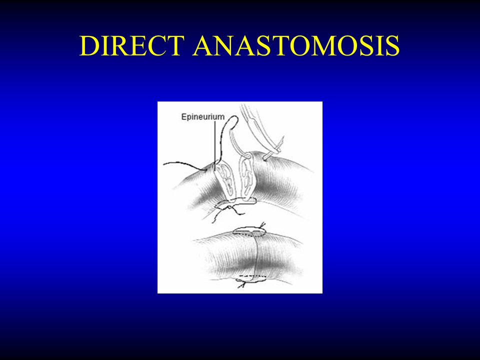 DIRECT ANASTOMOSIS