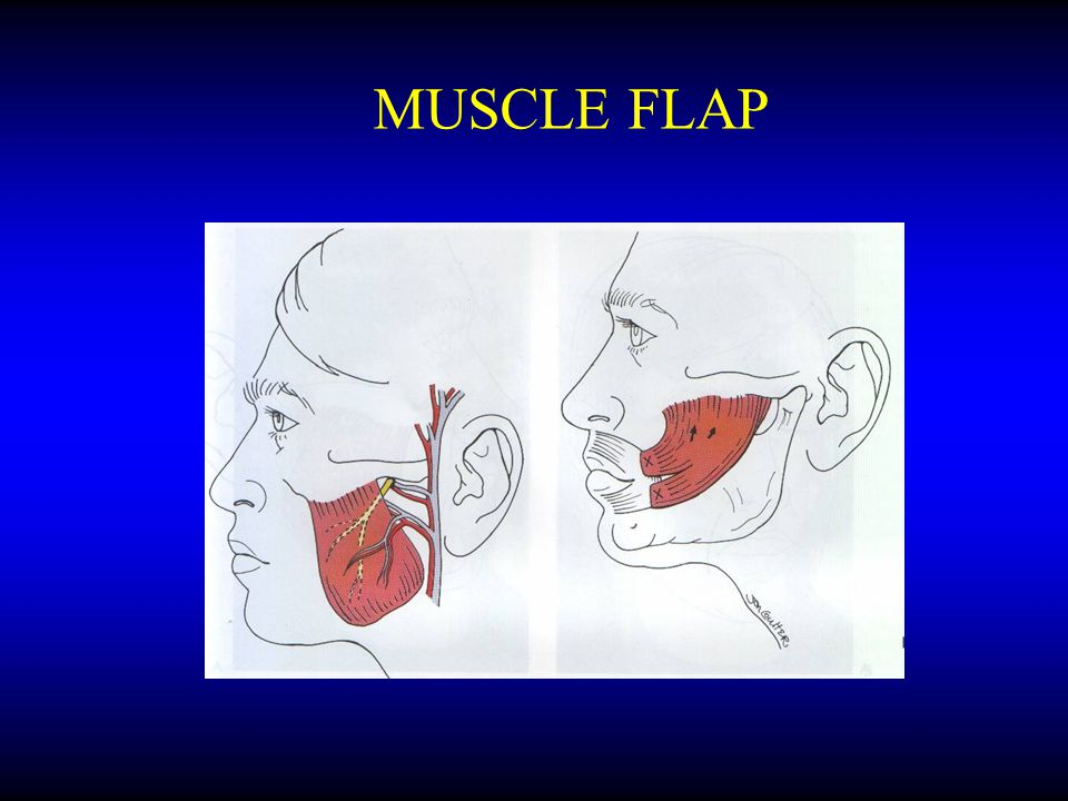 MUSCLE FLAP