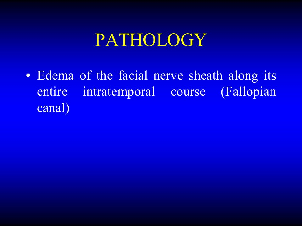 PATHOLOGY Edema of the facial nerve sheath along its entire intratemporal course (Fallopian canal)