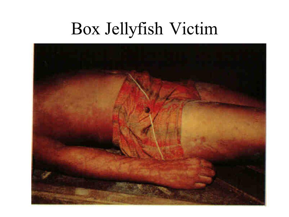 Box Jellyfish Victim