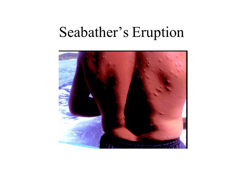 Seabather's Eruption