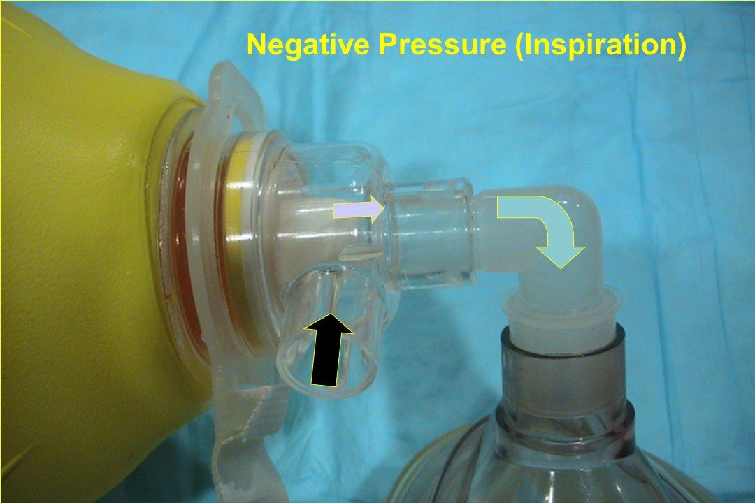 Negative Pressure (Inspiration)