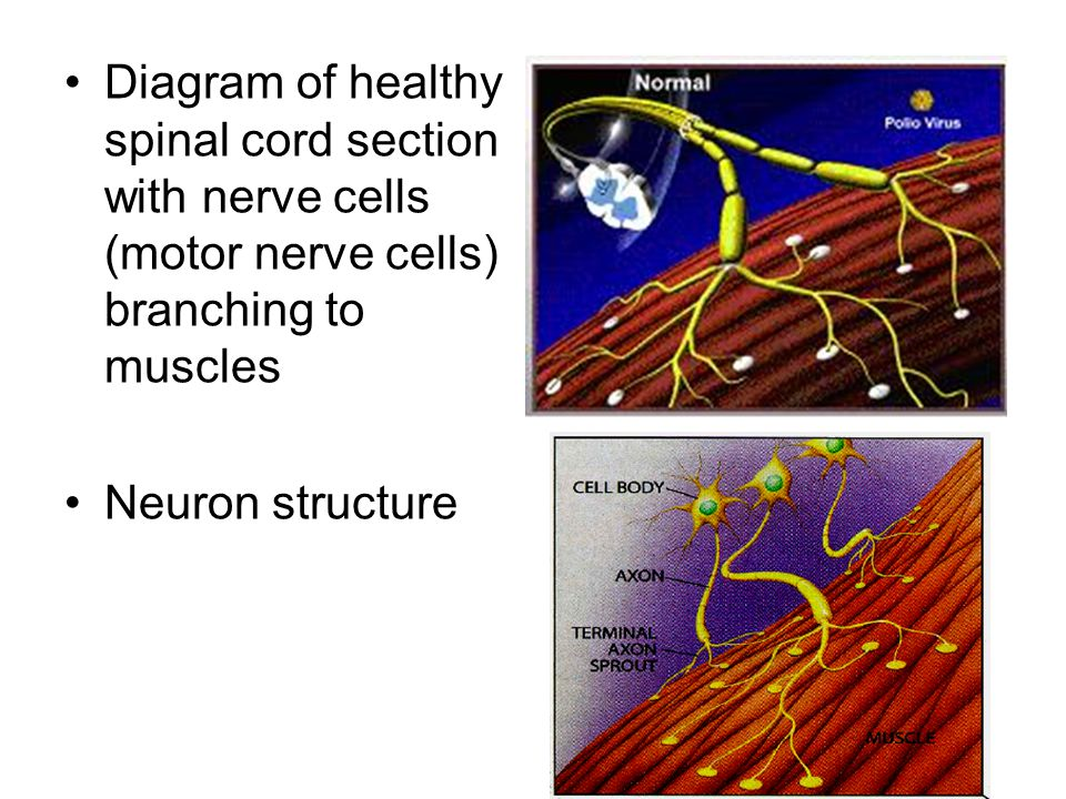 . Diagram of healthy spinal cord section with nerve cells (motor nerve cells) branching to muscles.