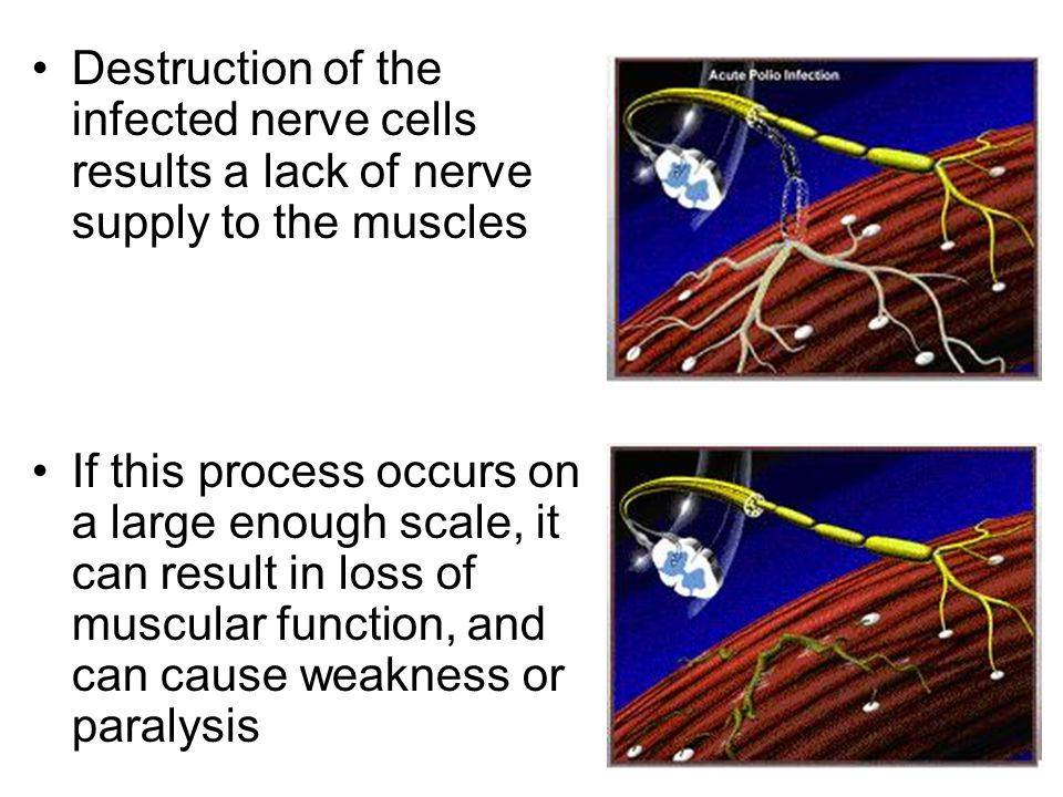 Destruction of the infected nerve cells results a lack of nerve supply to the muscles