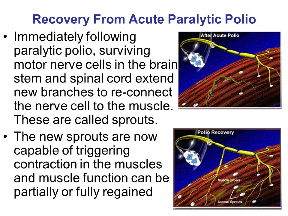 Recovery From Acute Paralytic Polio