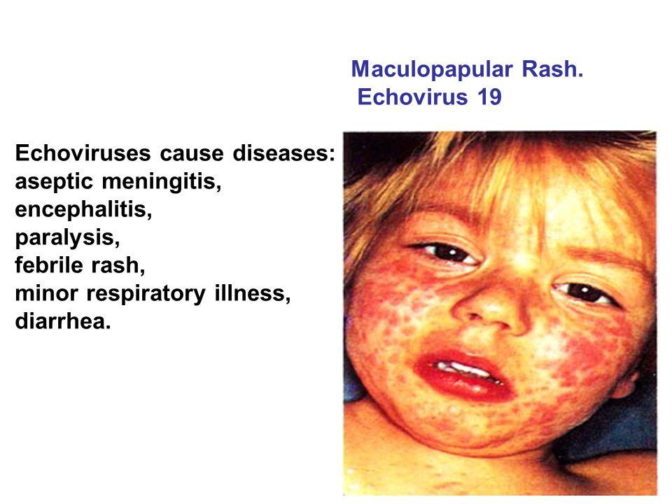 Maculopapular Rash. Echovirus 19. Echoviruses cause diseases: aseptic meningitis, encephalitis, paralysis,