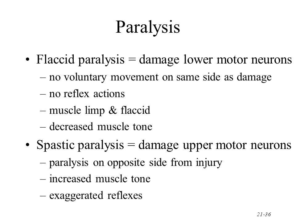 Paralysis Flaccid paralysis = damage lower motor neurons