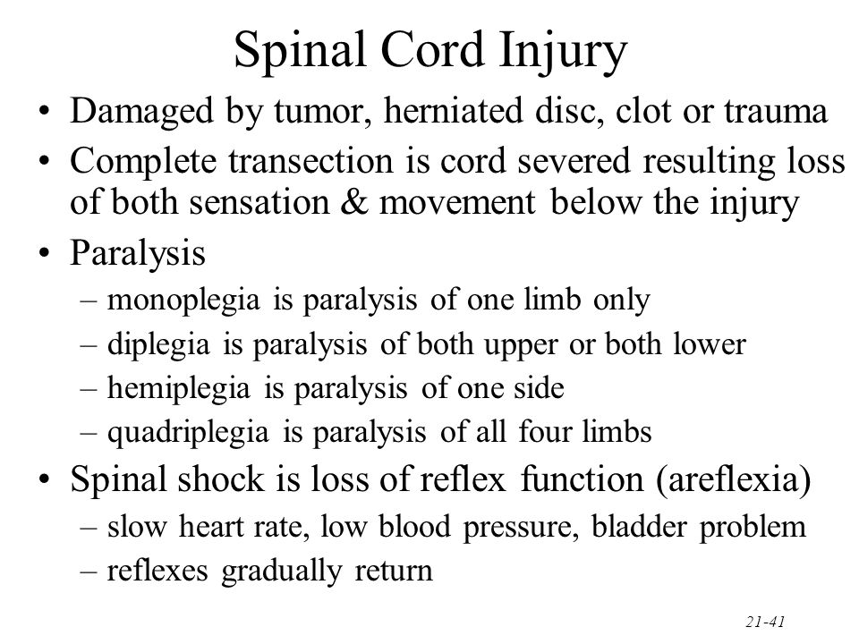 Spinal Cord Injury Damaged by tumor, herniated disc, clot or trauma