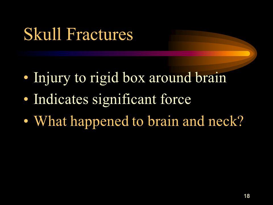 Skull Fractures Injury to rigid box around brain