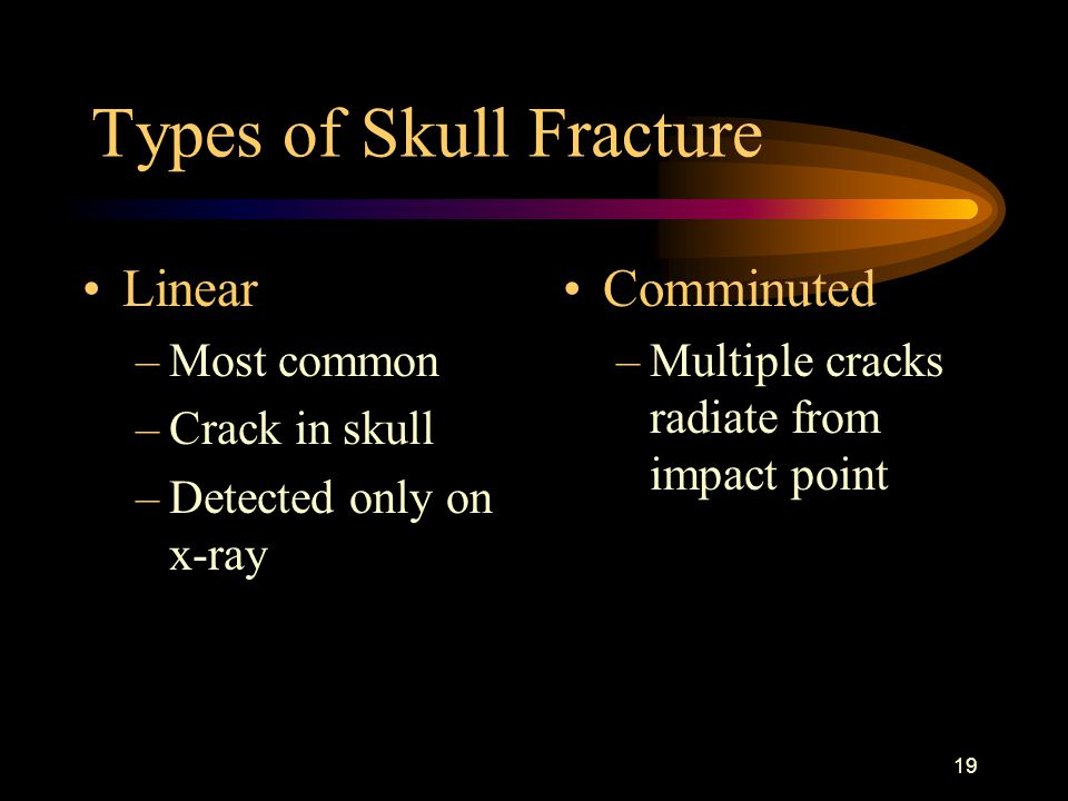 Types of Skull Fracture